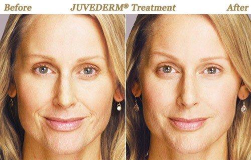 Photos BOTOX Juvederm Photofacial Chemical Peel