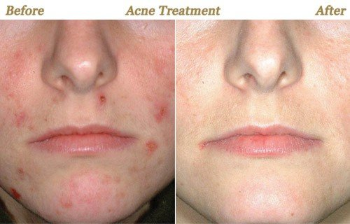 Photos Botox Juvederm Photofacial Chemical Peel