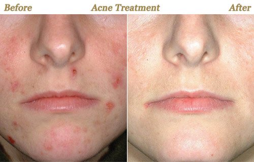 Acne Treatment Before After Photo Minneapolis MN