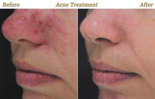 Acne treatment minneapolis mn for Acne salon treatments