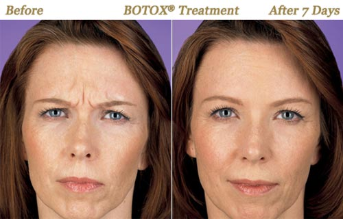 BOTOX Injections Wrinkle Removal Twin Cities MN