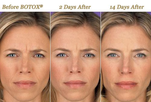 Before After Photo BOTOX Treatments Minneapolis MN
