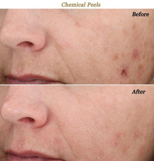 Facial peels twin cities