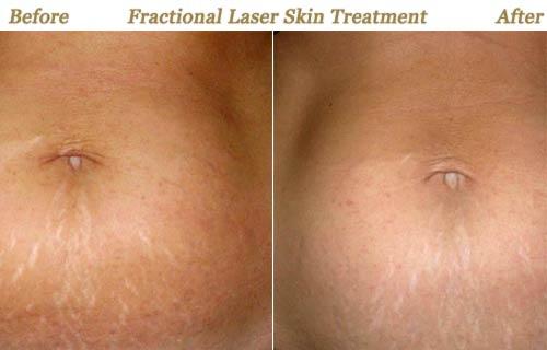 Fractional Laser Resurfacing Treatments Minneapolis