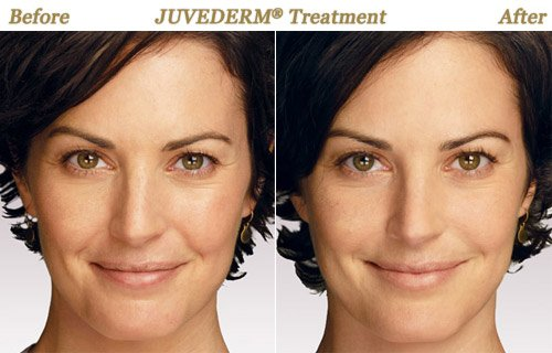 Juvederm Injections Minneapolis MN