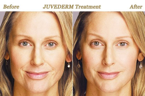 Before After Photos Juvederm Minneapolis MN