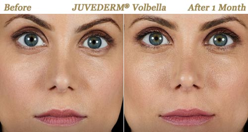 Juvederm Volbella Injections for Fuller Lips Twin Cities MN