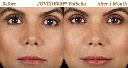 Before After Photos Juvederm Volbella Minneapolis MN
