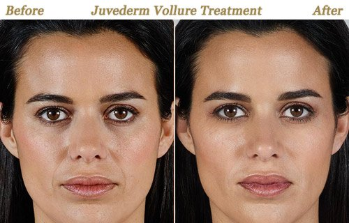 Before After Photos Juvederm Vollure Minneapolis St Paul MN