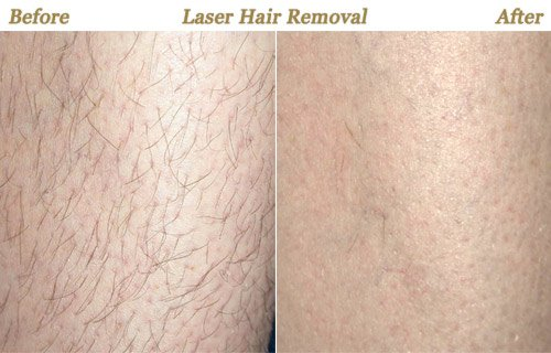 Laser Hair Loss Treatment