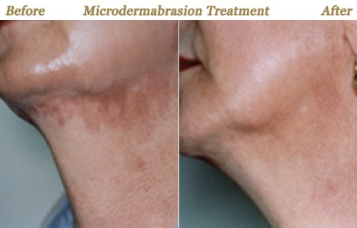 Microdermabrasion Treatment Before After Pictures Twin Cities MN