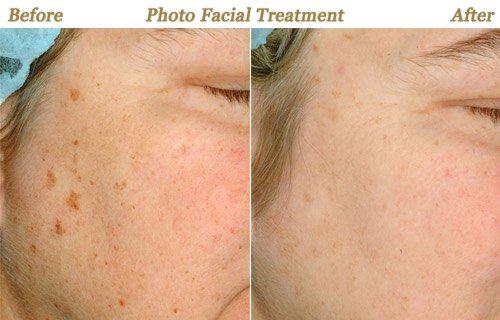 Before After Pictures Photo Facial Minneapolis St Paul MN